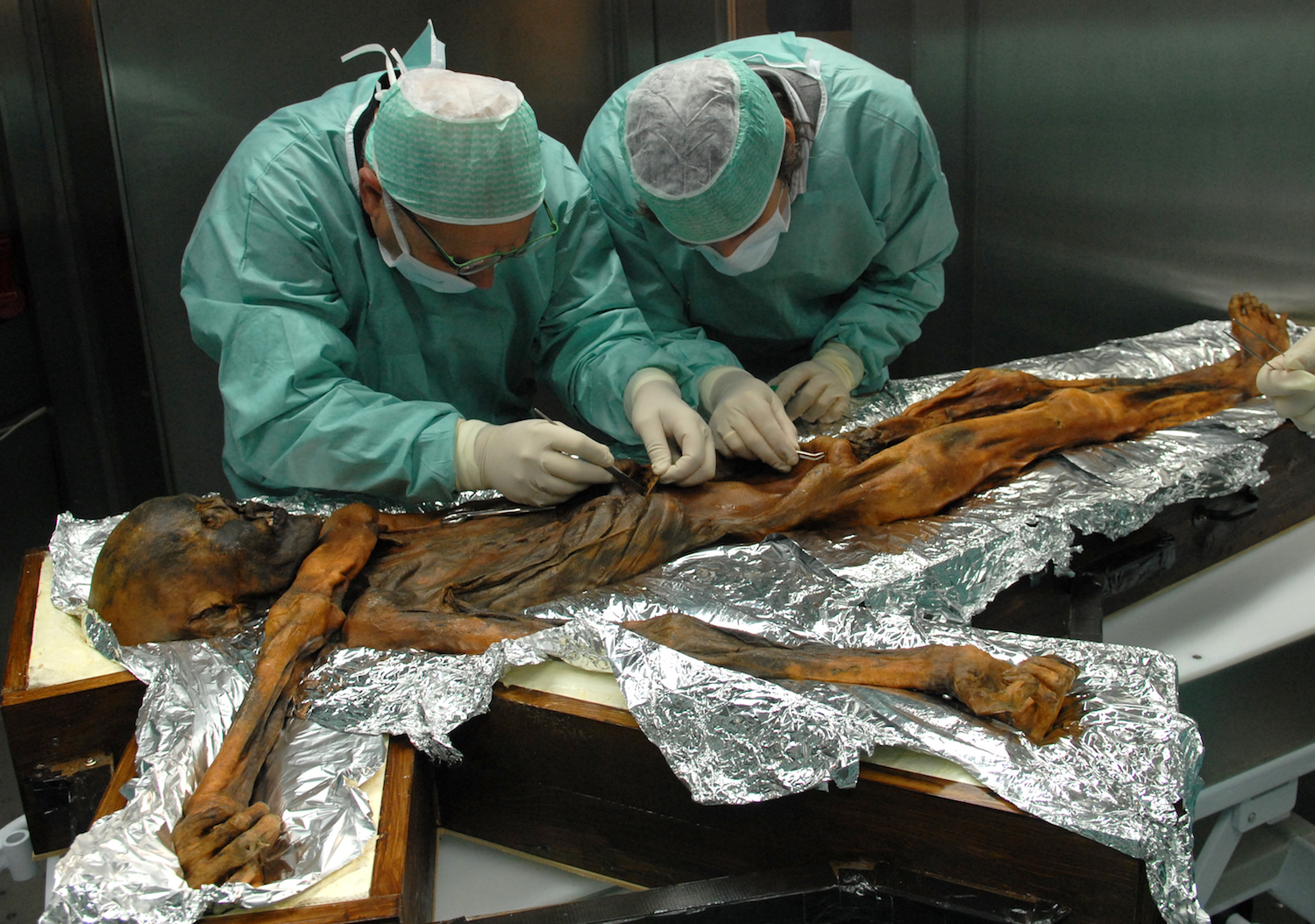 here's what ötzi the iceman ate before he was murdered | live science