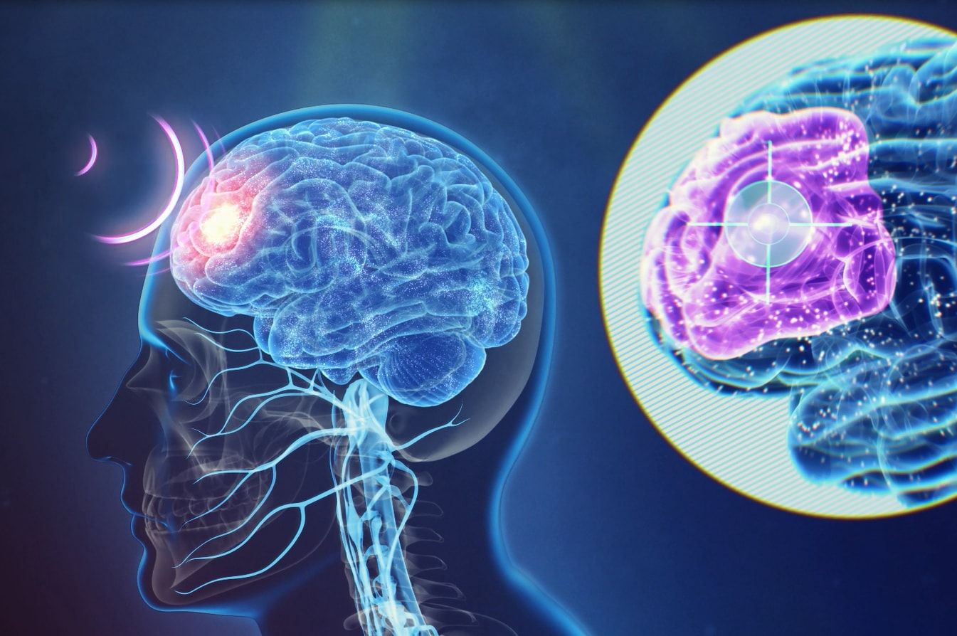 Illustration of a brain being targeted inside a skull.