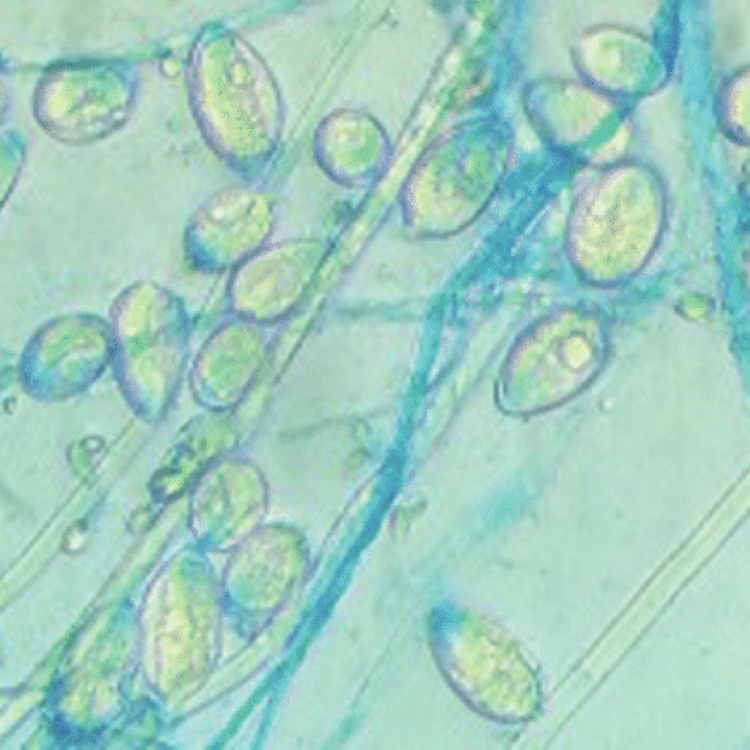 Phytophthora infestans