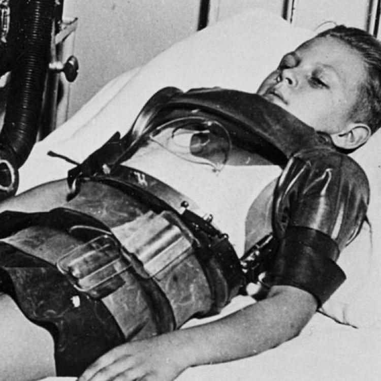 Ireland Polio Epidemic