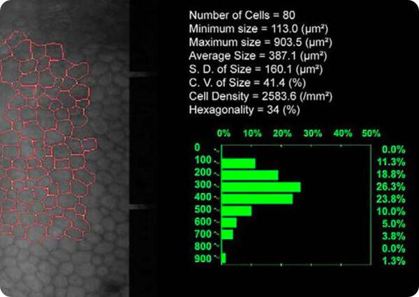 Recuento de células endoteliales