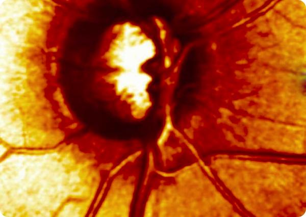 Escaner nervio óptico