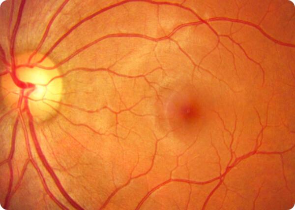 Retina y mácula