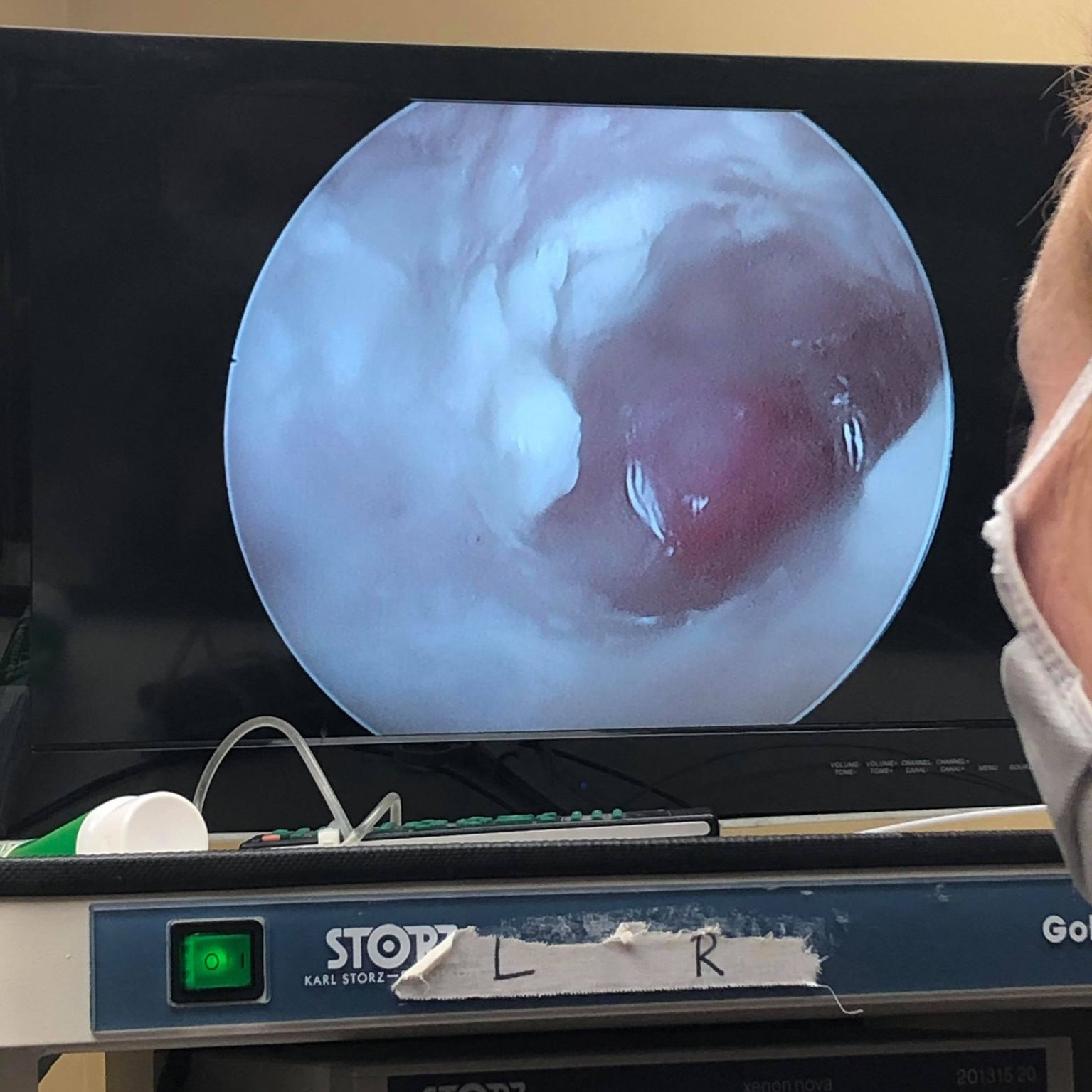 Screen showing what the otoscope records inside the ear canal of a pet.
