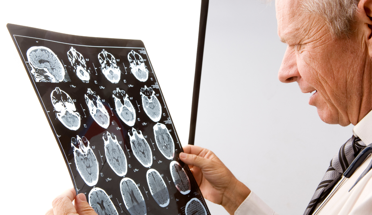 Decreasing your risk for Alzheimer's and dementia starts with brain health